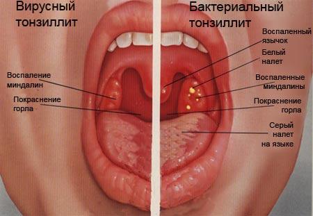 неприятный запах изо рта пробки в миндалинах